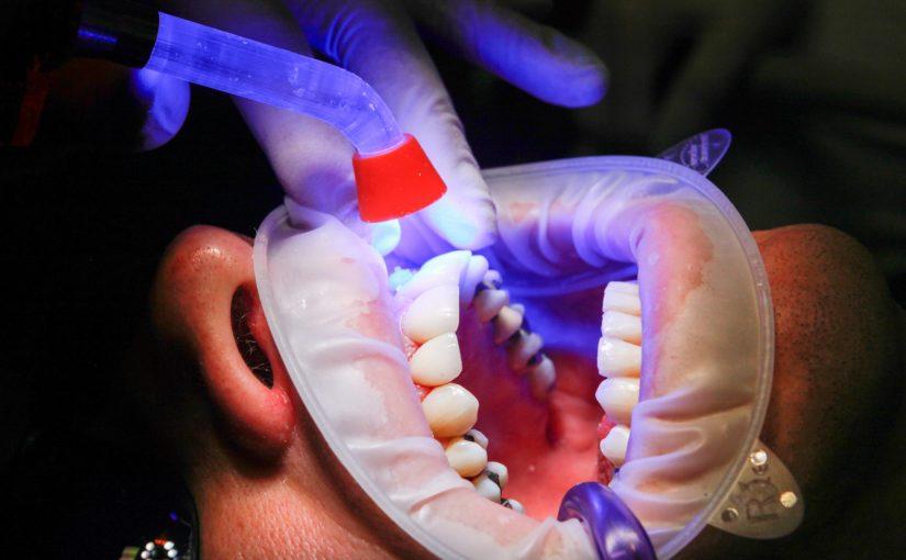 Zła sposób żywienia się to większe ubytki w zębach natomiast dodatkowo ich brak