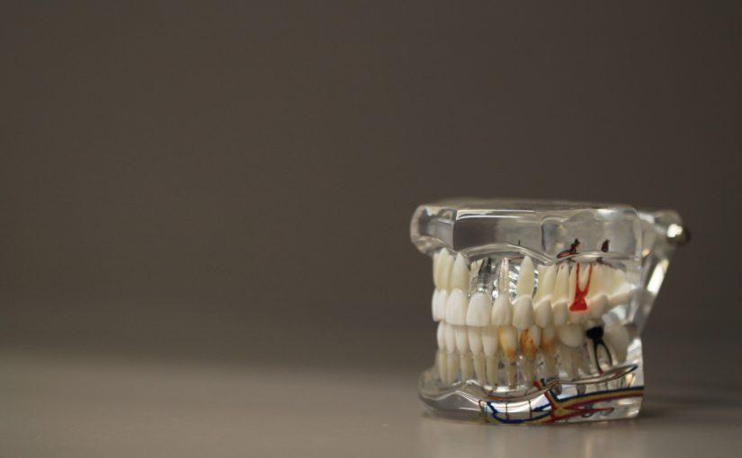 Zła metoda żywienia się to większe niedostatki w jamie ustnej oraz dodatkowo ich zgubę